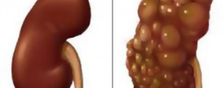 как кисти на бъбреците