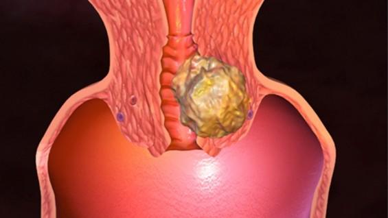 Рак на матката – симптоми, причини и лечения