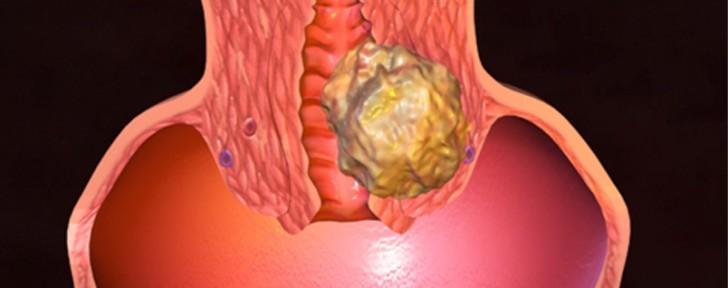 как рак на матката