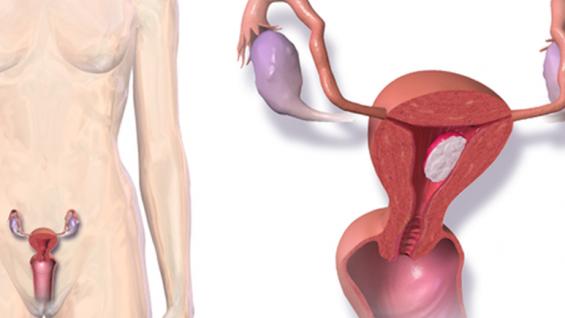 Рак на матката – причини, симптоми и лечение