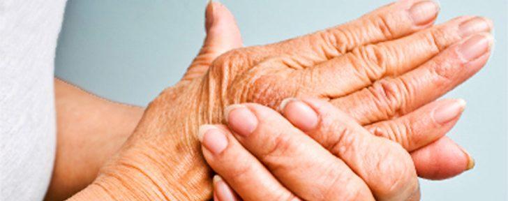 артрит лечение