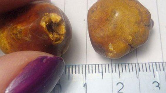 камъни в жлъчката – причини, симптоми и лечение