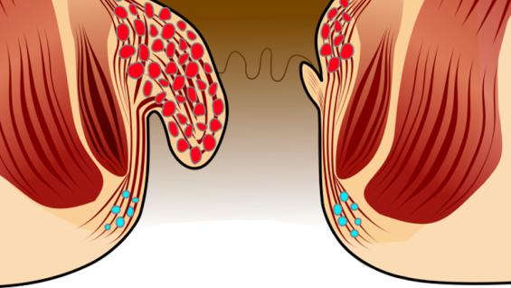 Хемороиди – причини симптоми и лечение